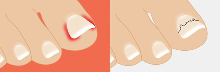 Скобы для ногтей