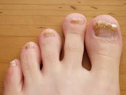 Начальные признаки грибкового заболевания ног и ногтей