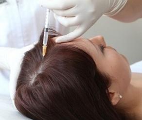 Плазмотерапия для волос: ее особенности