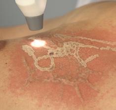 способы удаления татуировки