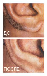 эпиляция ушей