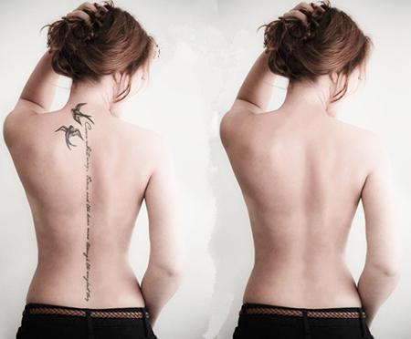 Лазерная шлифовка: удаление тату