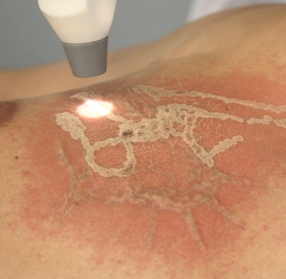 Удаление татуировки: стоимость