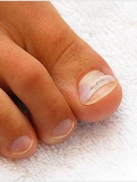 Исправление вросшего ногтя