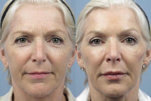 коррекция овала лица до и после фото