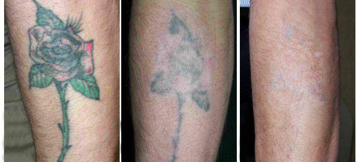 Лазерное удаление татуировок - до и после