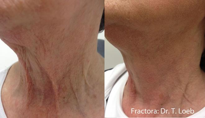 Фракционный лифтинг Fractora - до и после