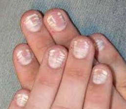 Как вылечит грибок ногтей на руках в домашних условиях