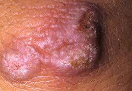 Кондиломы у беременных симптомы