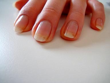 Начальные стадии грибка ногтей на руках фото