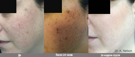 Устранение пигментации и сосудистых дефектов — Lumecca - до и после